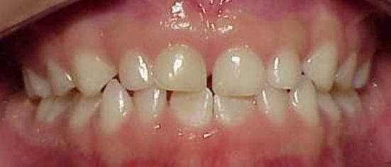 Desgastes e Início de Espaço Entre os Dentes