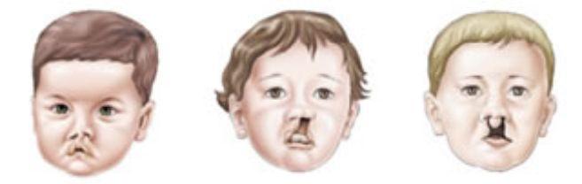 Fissuras labio – palatinas