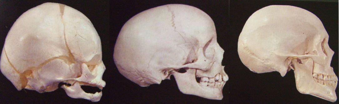 Ortopedia Funcional