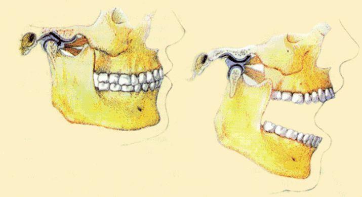 funcao-ortopedia-funcional