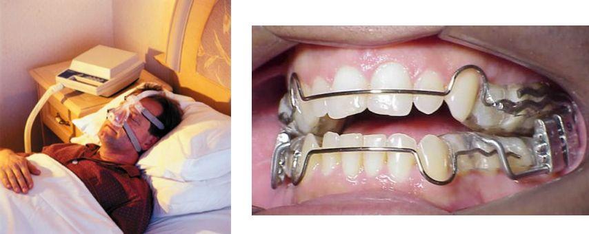 Apneia - CPAP e Aparelho Intra-Oral