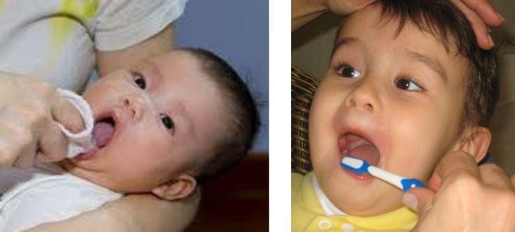 fotos-cuidados-higiene-oral1-1