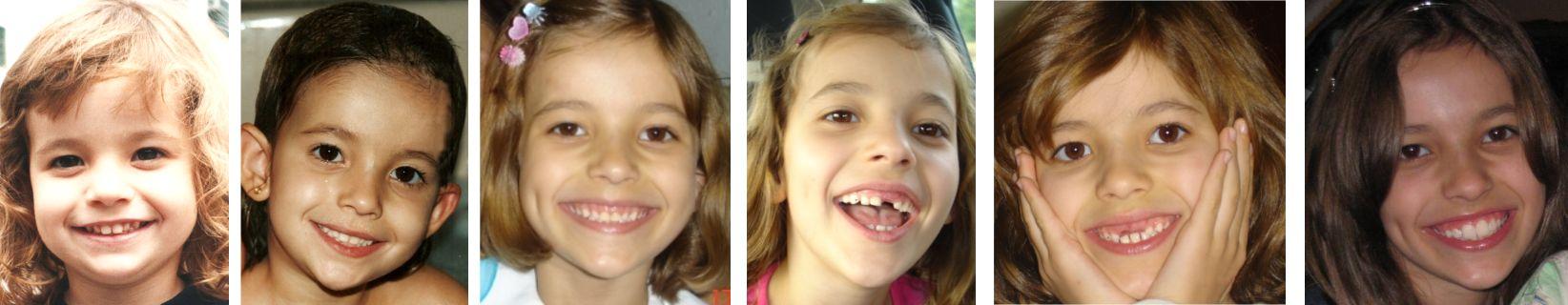 Evolução adequada da dentição